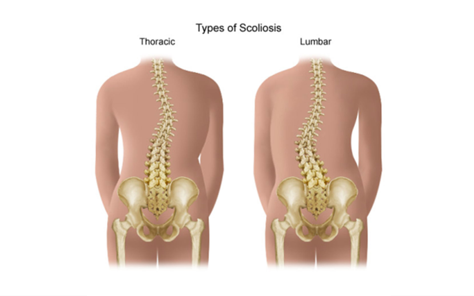 scoliosis treatment in Toronto