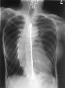 scoliosis back x-ray